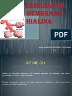 241878167 Enfermedad de La Membrana Hialina Pptx
