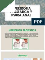 Hipertrofia Prostática y Fisura Anal 2