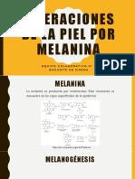 Alteraciones de La Piel Por Melanina
