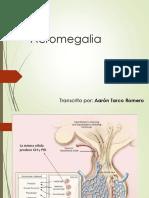 02 Acromegalia