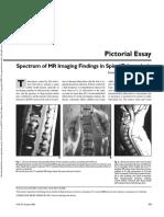 6. Spectrum of MR Imaging Findings in Spinal Tuberculosis