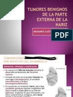 Tumores benignos  de La Nariz