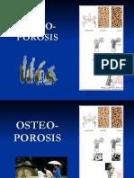 2017 dr. Iin SLIDE KULIAH Osteoporosis osteomalacia rickettsia