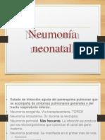 neumonia + sam.pptx