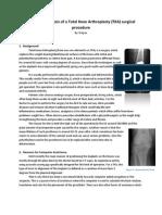 Workflow Analysis of a Total Knee Arthroplasty
