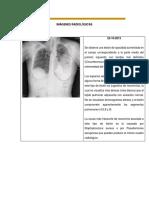 Neumo Informe de Radiografias