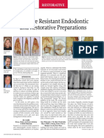 Fracture Resistant Endodontic and Restorative Dentistry