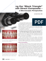Treating Black Triangles With Direct Composite