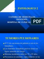 5- TÓRAX PATOLÓGICO 2.ppt