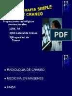 Craneo y Senos Paranasales 19-05-2017
