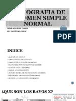 Radiografia de Abdomen Simple Normal