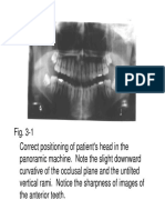Chapter 03 Positioning Errors in Panoramic Radiography.pdf