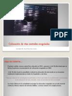 colocacion_vias_centrales.pdf