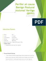 Vertigo Perifer et causa Benign Postural Paroksismal Vertigo.pptx