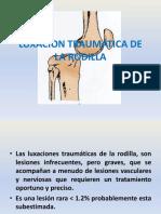 4. Luxacion de Rodilla