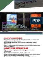 Presentación LITIASIS.pptx