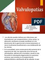Clase de Valvulopatias