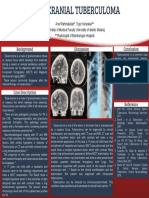 Intracranial Tuberculoma 5
