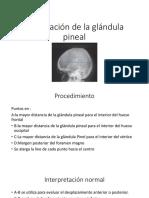 Localización de La Glándula Pineal