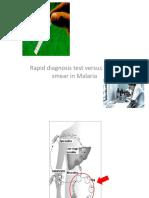 Malaria Diagnosis 2 Rev