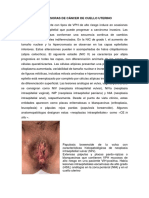 Lesiones Precursoras de Cáncer de Cuello Uterino