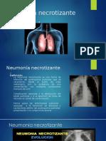 Neumonia necrotizante 1.pptx