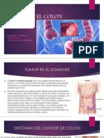 Tumor en El Colon Sigmoide1