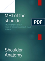 mrishoulder-160528142230