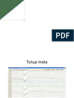 EEG normal ppt.pptx