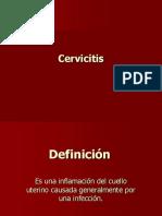 Cervicitis.pps