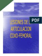 Lesiones de la articulacion coxofemoral