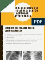 Lesion Alveolar