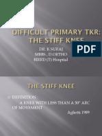 Tkr in Stiff Knee