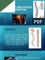 Lesiones Medulares en Cuadriplejia (1)