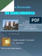 7 Papila Excavada No Glaucomatosa