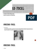 Opacidad focal.pptx