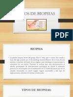 2.4 Tipos de Biopsias