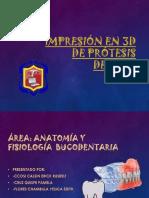 Impresión en 3d de Prótesis Dental