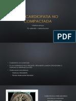 Miocardiopatia No Compactada