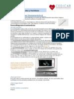 Informacion Ecocardiograma