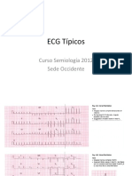 ECG Estudio Individual