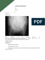Acetabular Fracture