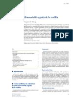 Monoartritis Aguda de Rodilla