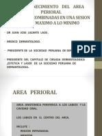 Mesa Redonda (1)