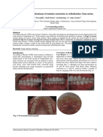 Biomechanical Implications of Rotation Correction in Orthodontics- Case Series