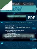 150998380-Distalizacion-de-Molares.pptx