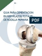 Cementacion Es Rtr