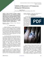 Gastric and Umbilical Metastasis of Cutaneous Malignant Melanoma