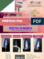 Prótesis Fija Maqueta