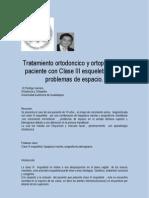 Reporte Caso Clinico Clase III Dr Rodrigo Gamero Ortodoncista